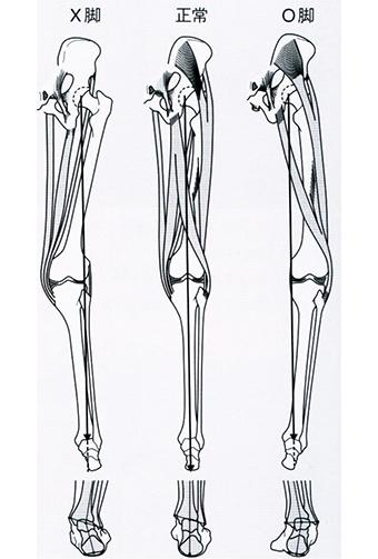 X脚−外反足 直膝−直足 O脚−内反足