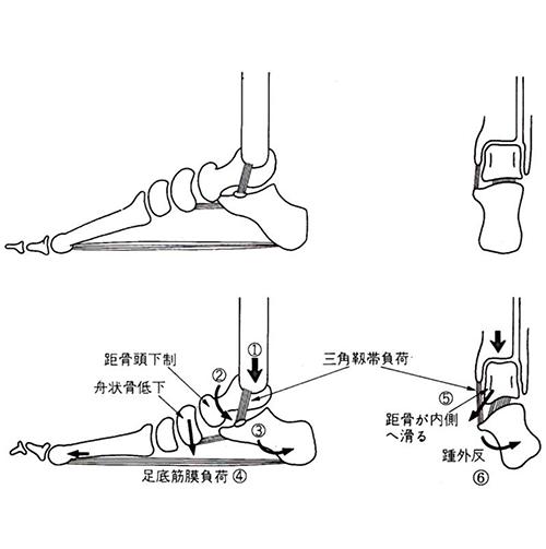 踵(かかと)のバランスは体重をかけた時に、容易に崩れてします部位でもあります。